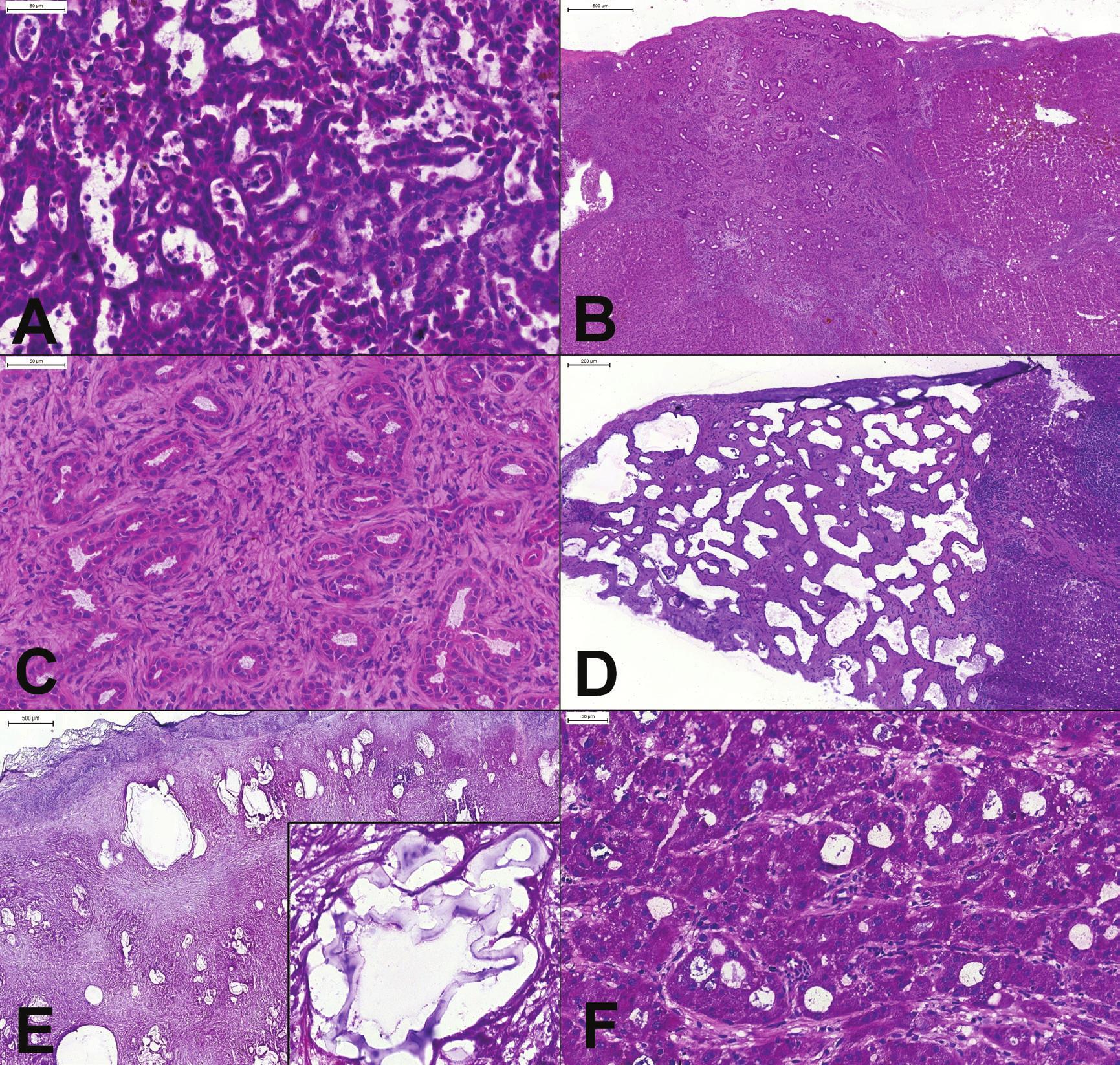 (A) Metastáza adenokarcinómu choledochu v pečeni. Až po vylúčení metastatického origa by mohol tumor byť považovaný za primárny intrahepatický cholangiokarcinóm. (B, C) Subkapsulárne ložisko u pacienta so suspektným tumorom žalúdka. Ostro ohraničené ložisko, tvorené pravidelnými žliazkami v kolagénnej stróme s lymfocytmi, bez mitóz a cytologických atypií. Peroperačná a definitívna biopsia: biliárny adenóm. (D) Subkapsulárne ložisko u pacienta s karcinómom žalúdka. Nepravidelne anastomozujúce cysticky dilatované priestory vystlané blandným plochým až kubickým biliárnym epitelom. Peroperačná a definitívna diagnóza: biliárny hamartóm (von Meyenburg complex). (E) Tumor pečene u 55-ročného muža. Mikroskopicky zachytené výrazné fibroproduktívne zmeny s mnohopočetnými cystickými štruktúrami. Vo veľkom zväčšení (vložený obrázok) charakteristická laminárna membrána. Peroperačná a definitívna diagnóza: alveolárna echinokokóza. (F) Tumor pečene u 60-ročného muža. Aj keď sú nádorové bunky cytologicky relatívne málo atypické, architektonika (široké trámce a pseudoglandulárne formácie) umožňujú spoľahlivú peroperačnú diagnózu hepatocelulárneho karcinómu.