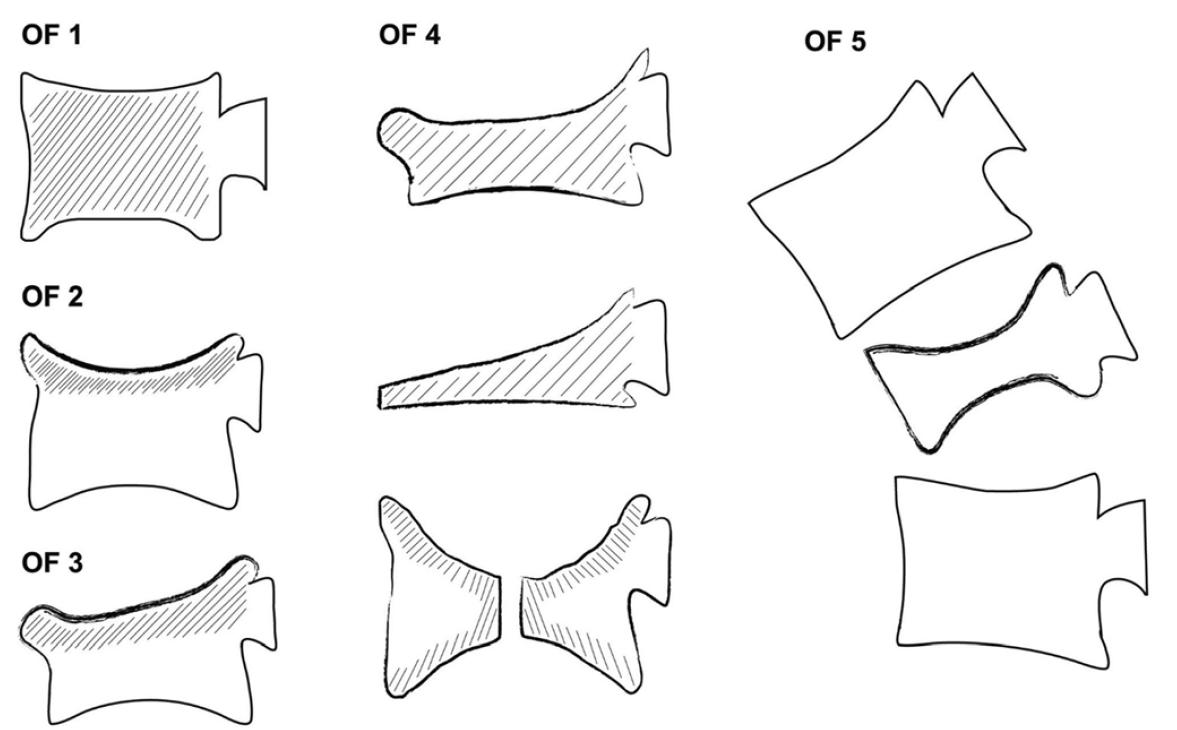 Schéma 1. Schématické zobrazení subtypů osteoporotických fraktur (OF1-5) dle Schnake et al. (2018)<br> Scheme 1. Schematic representation of the 5 OF subtypes, Schnake et al. (2018)