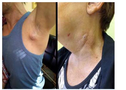 Tularémie: axilární lymfadenopatie, jizva po drenáži kolikvované krční uzliny