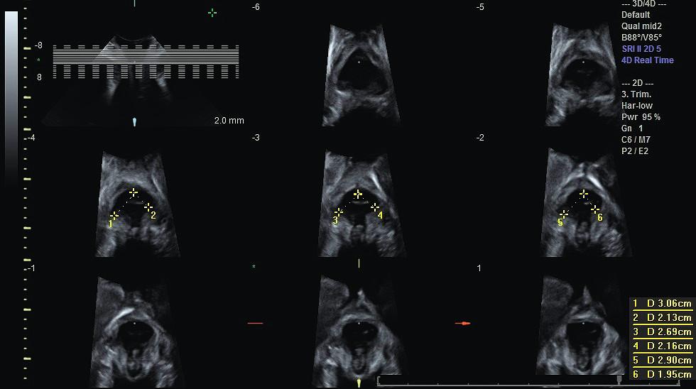 Sonografická tomografie (TUI) a hodnocení avulze MLA ve třech centrálních snímcích pomocí vzdálenosti levator-urethra gap