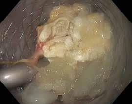 Obr. 18. Metalický stent zavedený do ohraničené pankreatické nekrózy, lumen stentu obturováno nekrotickými hmotami