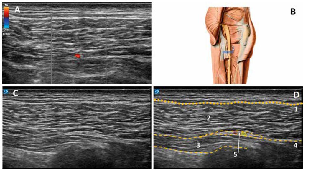 Identifikace NCFP v subgluteální krajině. A: dopplerovský obraz cévy a nervu mezi svalovými fasciemi. B: ilustrativní anatomický obraz, 1. poloha sondy. C: nativní ultrazvukový obraz subgluteální krajiny. D: kolorovaný obraz, 1. fascia lata, 2. m. gluteus maximus, 3. dlouhá hlava m. biceps femoris, 4. mezisvalová fascie, 5. nervově‑cévní svazek obsahující NCFP