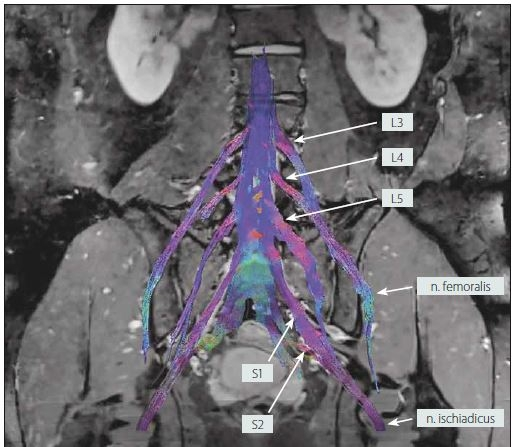 MR traktografie oboustranného lumbosakrálního plexu u zdravého dobrovolníka (muž, 25 let).<br> Fig. 5. MR tractography of the bilateral lumbosacral plexi in a healthy volunteer (male, 25 years).