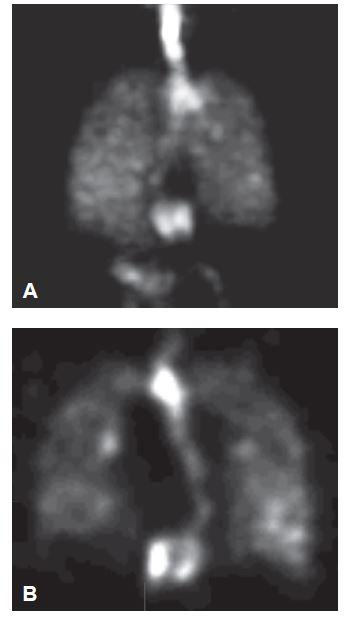 Zobrazení plicní ventilace: a) 3D zobrazení, b) řez ve frontální rovině. Útvar patrný na scintigrafii plicní perfuze je součástí trávicí trubice. Je dobře patrná ústní dutina a jícen naplněný spolykaným radioaerosolem s ložiskově zvýšenou akumulací v distální části.