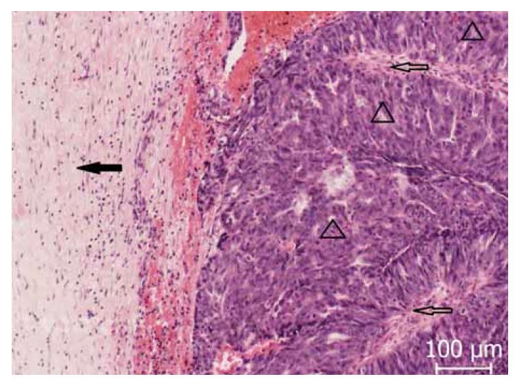 Okrajová oblast zachycující fibrózní okrsky (◀) nádorovou infiltrací, v tomto místě s nádorovými papilami (△) s patrným centrálním fibrovaskulárním stromatem (⇦).<br> Fig. 1. Peripheral area capturing fibrous areas (◀) by tumor infiltration, in this place with tumor papillae (△) with visible central fibrovascular stroma (⇦).