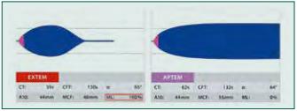 Hyperfibrinolýza: Provedený test EXTEM s patologickým tvarem křivky a patologickými hodnotami parametrů LI30, LI60 či ML (červený ráme‑ ček, normální hodnoty 0–15 %) může znamenat zvýšenou míru fibrinolýzy. K ověření je proveden test APTEM s antifibrinolyticky působícím aprotininem. Při normalizaci tvaru křivky a parametrů lýzy přichází v úvahu terapie anti‑ fibrinolytiky, např. kyselinou tranexamovou.