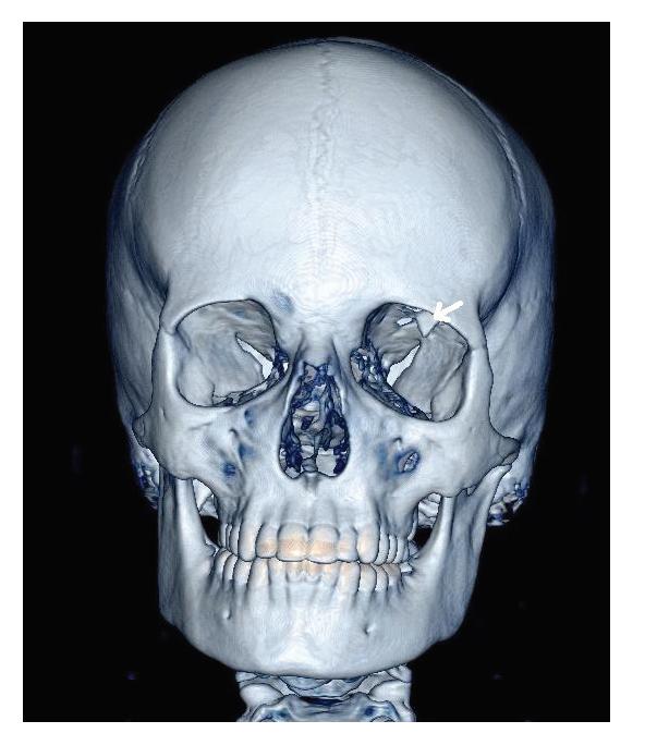 Blow-in fraktura stropu levé orbity s dislokovaným úlomkem zasahujícím do očnice (šipka), CT vyšetření, 3D rekonstrukce