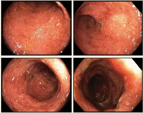 Koloskopie před zahájením biologické léčby, Mayo subscóre = 3.<br> Fig. 1. Colonoscopy before biological treatment, Mayo subscore = 3.