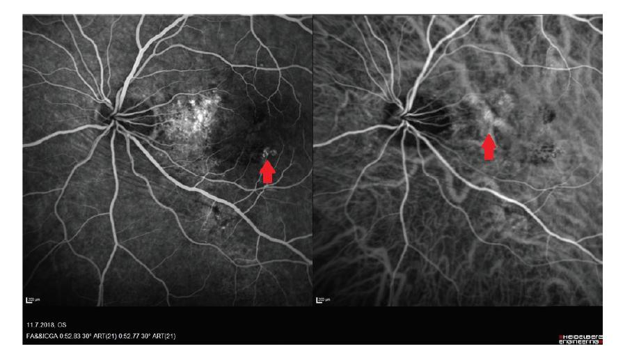 Vlevo snímek fluorescenční angiografie - patrná chorioretinální anastomóza, vpravo snímek z angiografie s indocyaninovou zelení – patrna makrocéva v papilomakulárním svazku