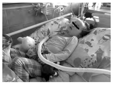 Intenzivní rehabilitační péče je u pacientů se získaným poškozením mozku stěžejní