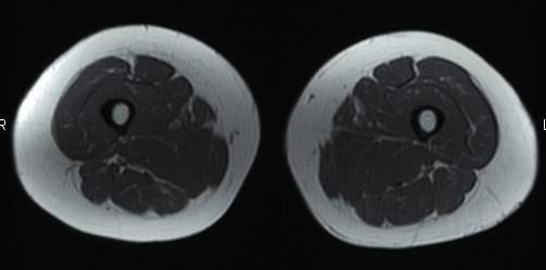 Axiální T1 vážená sekvence – zdravý sval. Zdroj: Archiv Revmatologického ústavu (ÚVN Střešovice, Discovery 450; 1,5 T)