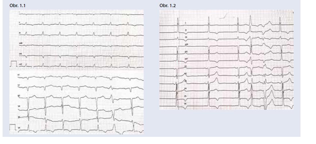 Príklady EKG pacientov so špecifickými príčinami hypertrofie ĽK: a) EKG pacienta s AL amyloidózou srdca – nízka voltáž QRS v štandardných zvodoch, obraz pseudonekrózy Q V1-2, AV-blokáda 1. stupňa (PQ 220 ms) b) EKG pacienta s Fabryho chorobou – vysoká voltáž QRS, repolarizačné zmeny v inferolaterálnych zvodoch, hraničné PQ (120 ms). <br> Archív autora