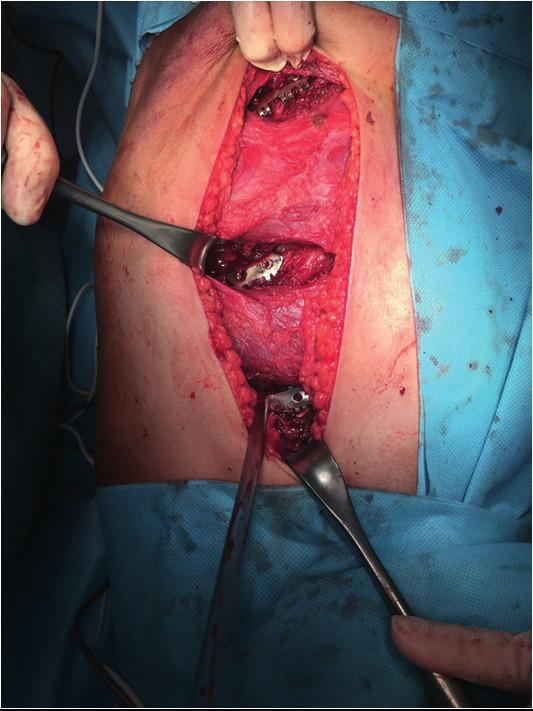 Šetrná disekce svalů při naložení žeberních dlah, omezující pooperační bolestivost