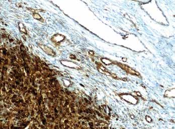 Imunohistochemický průkaz protilátky anti-Nestin v novotvořených kapilárách na periferii tumoru (zvětšení 200x).