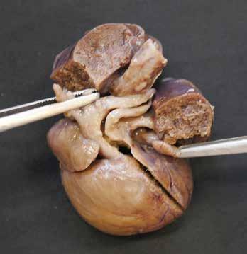 Společný arteriální trunkus s odstupem arteriálních větví pro horní polovinu těla a patrnou levostrannou plicní arterií.