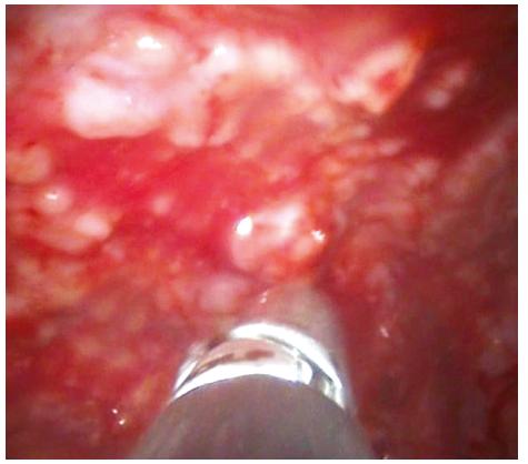 Pleuroskopický obraz stejného pacienta zobrazující masivní postižení parietální pleury nodulárním procesem, v tomto případě lymfomem pleury. Patrny bioptické kleště při odběru vzorku na histologické vyšetření.
