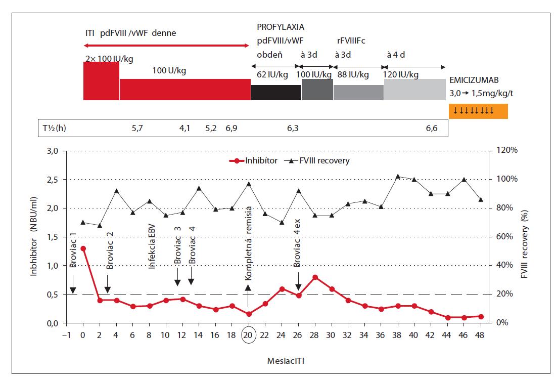 Pacient 3 – Úspešná ITI, kompletná remisia v 20. týždni s prechodom na profylaxiu faktorom VIII. T. č. profylaxia emicizumabom.<br> ITI – indukcia imunotolerancie, pdFVIII/vWF – plazmatický FVIII/von Willebrandov faktor, rFVIIIFc – rekombinantný FVIII konjugovaný s Fc fragmentom, T1/2 – biologický polčas FVIII