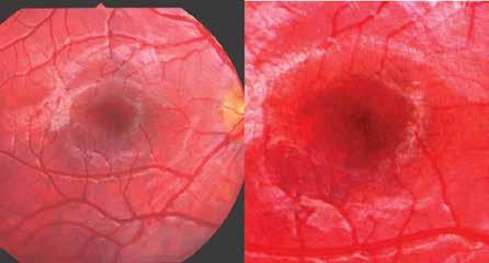 """Vlevo: obraz mapovité pigmentace a depigmentace v centrální oblasti sítnice a vpravo: detail """"makulární skvrnitosti"""""""