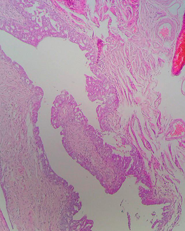 Fimbriae tubae uterinae so seróznym tubálnym intraepiteliálnym karcinómom (STIC); prítomná je stratifikácia jadier a cytologické atypie