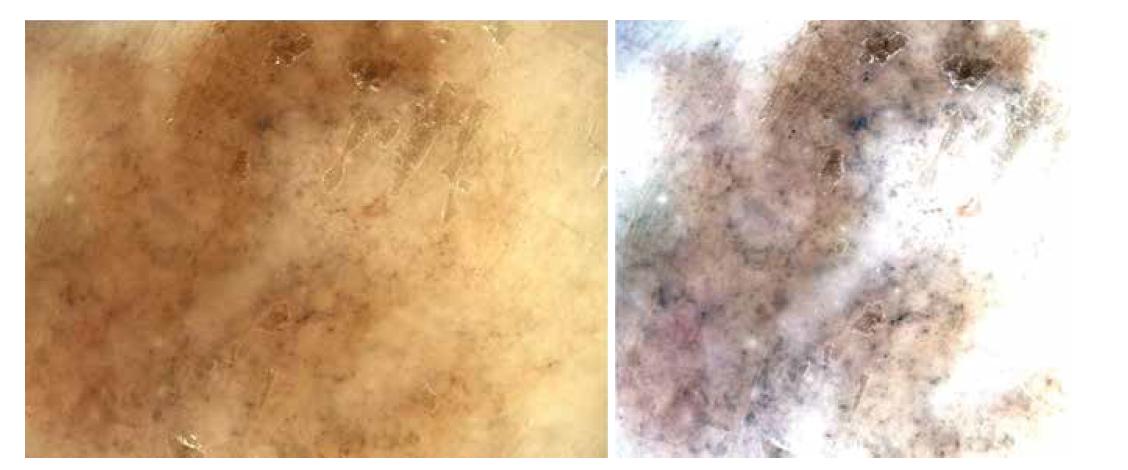 Obr. 4a,b. Dermatoskopicky a zejména při softwarovém odfiltrování pozadí na pravém snímku (b) velmi zřetelně vystoupí chaotičnost struktur a tvaru, růžové a bělavé zbarvení částí léze stejně jako šedočerné tečky – známky regrese.