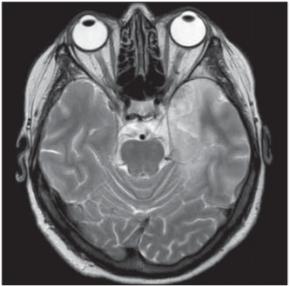 Herpetická encefalitida. Vyšetření MR, transverzální T2 vážený snímek – patologický T2 zvýšený signál kortikosubkortikálně, temporopolárně a temporomediálně vlevo.<br> Fig. 7. Herpes viral encephalitis. MRI scan, transversal T2-weighted image – pathological T2 hyperintensities in cortical/subcortical, left temporopolar and left temporomedial areas.