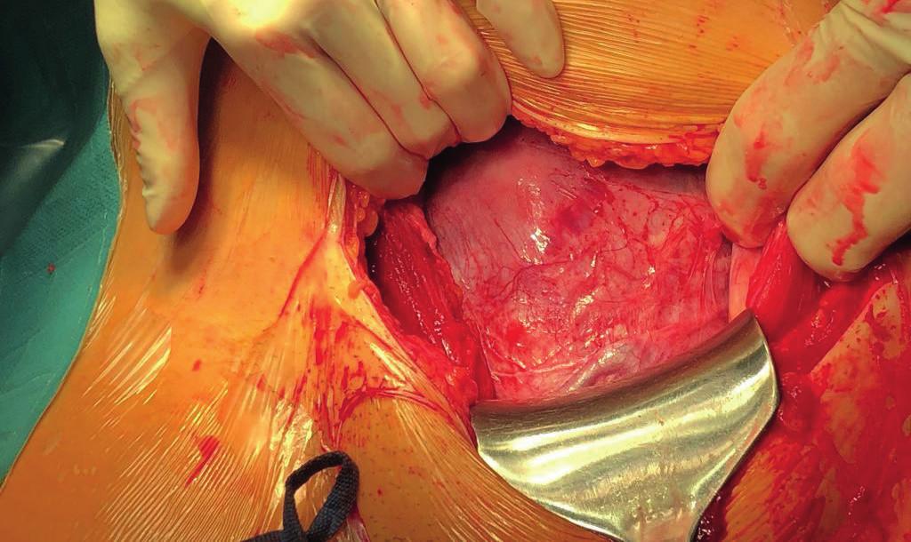 Peroperační nález dolního děložního segmentu při třetím císařském řezu