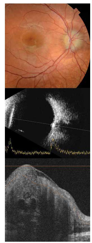 Foto očního pozadí pravého oka 8letého pacienta zobrazuje pseudoedém predominantně temporálně. Sonograficky hyperechogenita v oblasti papily zrakového nervu pravého oka, na swept source OCT skenu viditelné drobné mnohočetné drúzy jako ostře ohraničená hyporeflektivní ovoidní ložiska. Na OCT skenu jsou dále patrné cévy, které jsou hyporeflektivní s charakteristickým stínem