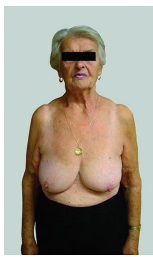 Konzervativní výkon − žena 76 let<br> Fig. 1: Conservative surgery – a 76-year-old woman