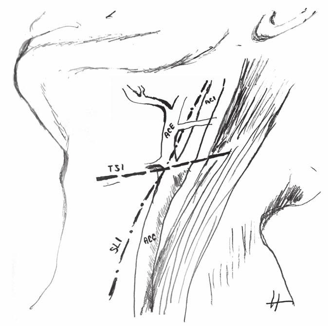 Schéma umístění krátkého podélného a příčného kožního řezu při karotické endarterektomii. ACC – arteria carotis communis; ACE – arteria carotis externa; ACI – arteria carotis interna; SLI – krátký podélný kožní řez; TSI – příčný kožní řez<br> Fig. 1. A scheme of the location of the short longitudinal skin incision and transverse skin incision during carotid endarterectomy. ACC – common carotid artery; ACE – external carotid artery; ACI – internal carotid artery; SLI – short longitudinal skin incision; TSI – transverse skin incision