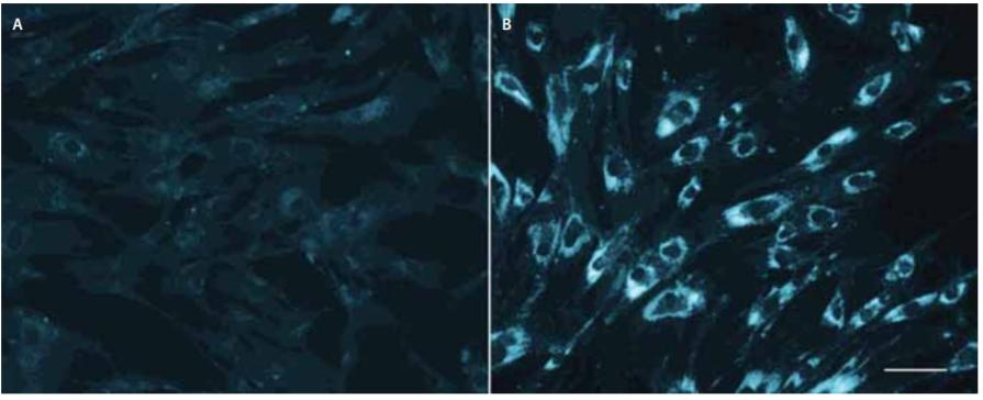 Buněčné kultury kožních fibroblastů po barvení filipinem, bez zátěže liproteinem o nízké hustotě. Levý panel (A) kontrolní fibroblasty; pravý panel (B) fibroblasty pacienta s infantilní formou Niemann-Pickovy choroby typu C1 nesoucího dvě nulové mutace<br> v NPC1. Délka značky v pravé části odpovídá 50 μm. Fig. 2. Filipin staining of skin fi broblast cell cultures without low-density lipoprotein-challenge. Left panel (A) control fibroblasts; right panel (B) fi broblasts from an infantile Niemann-Pick disease type C1 patient carrying two null mutations in NPC1. Marker on the right corresponds to 50 μm.