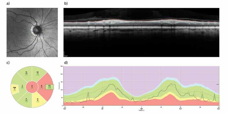 . Retinální vrstva neurálních vláken (RNFL) měřena pomocí optické koherenční tomografie (OCT). Příklad vyšet- ření sítnice pravého oka před chirurgickou dekompresí chiasmatu u 65-ti leté ženy. Měření tzv. peripapilární RNFL probíhá podél zelené kružnice (a). Profil vrstev sítnice v naznačené trajektorii je na panelu (b), kde je také znázorněno ohraničení vnitřní limitující membrány a rozhraní mezi vrstvou axonálních vláken a těly gangliových buněk sítnice. Rozdíl mezi oběma profily tvoří tloušťku peripapilární RNFL a je znázorněn na panelu (d) jako silnější čára probíhající v zeleném pásu znázor- ňujícím normální hodnoty pro danou věkovou skupinu. Průměrné a normativní hodnoty tloušťky RNFL v nazálním a tem- porálním kvadrantu a jejich superiorních a inferiorních částech společně s globální hodnotou jsou znázorněny v panelu (c). Nazálním kvadrant vykazuje sníženou tloušťku RNFL jako následek komprese zkřížených vláken optického nervu