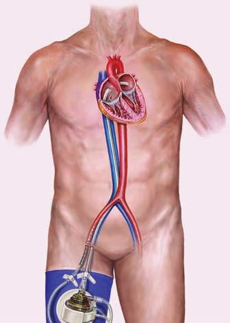 Perkutánny podporný obehový systém TandemHeart. Okysličenú krv odčerpáva pumpa cez kanylu umiestnenú do ľavej predsiene do descendentnej aorty. Tým sa odľahčuje ľavá komora a nahrádza sa jej činnosť [29].