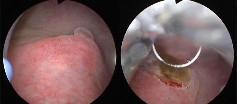 Cystoskopie a TUR biopsie: tumorózní útvar na zadní stěně močového měchýře<br> Fig. 2. Cystoscopy and TUR biopsy: tumorous formation on the bladder back wall