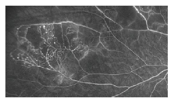 Poradiační cévní změny – mikroaneurysmata a arteriovenozní zkraty