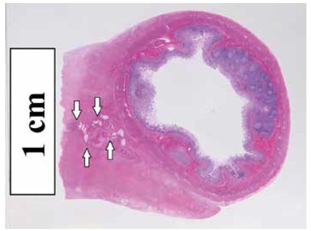 Histotopogram fibrotického zhrubnutia terminálneho mezentéria s jeho pôvodnými štruktúrami (šípky). Farbenie hematoxylín-eozín.