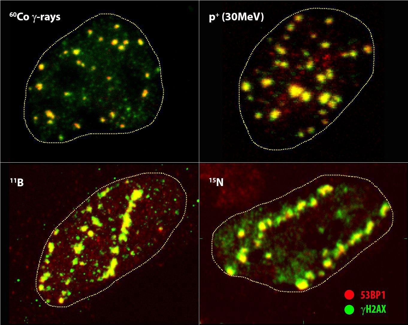 Mikroskopická struktura a jaderná distribuce ohnisek IRIF (γH2AX = zelená, 53BP1 = červená) generovaných indikovanými druhy ionizujícího záření vzájemně se lišícími energií a lineárním přenosem energie (LET) (viz tab. 1).
