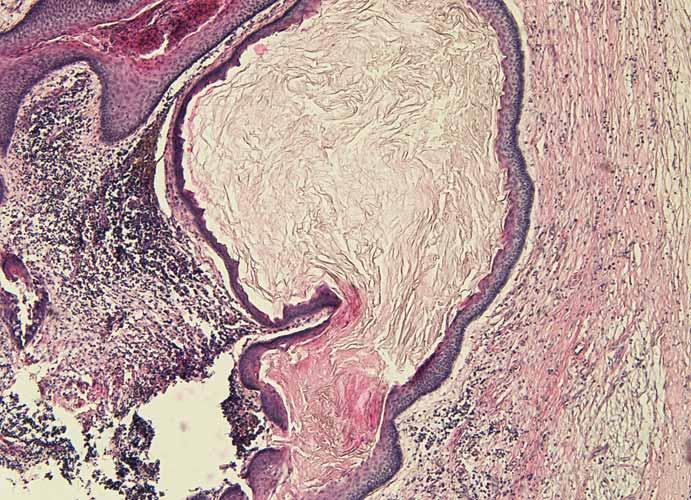 Histologický obraz odontogénnej epidermoidnej cysty.
