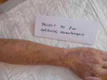 Obr. 1a. Devastace periferního žilního řečiště po 8 cyklech chemoterapie v režimu FOLFOX. Archiv Mgr. Šeflová, II. interní klinika gastroenterologická a geriatrická LF UP a FN Olomouc.