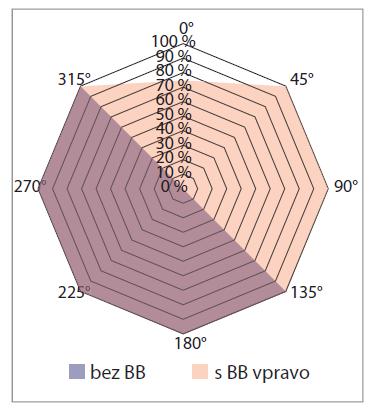 Grafické znázornění úspěšnosti identifikace zdroje zvuku v horizontální rovině při tolerované odchylce 45° (pacient 2 – pravé ucho neslyšící).<br> Graph 2. Visualisation of the percentage sound localisation success rate in the horizontal plane with a tolerated deviation of 45° (patient P1 – right-sided deafness).