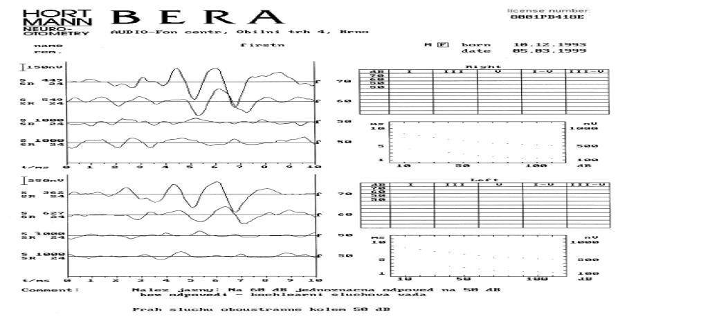 Percepční vada sluchu s prahem na 50/60 dB