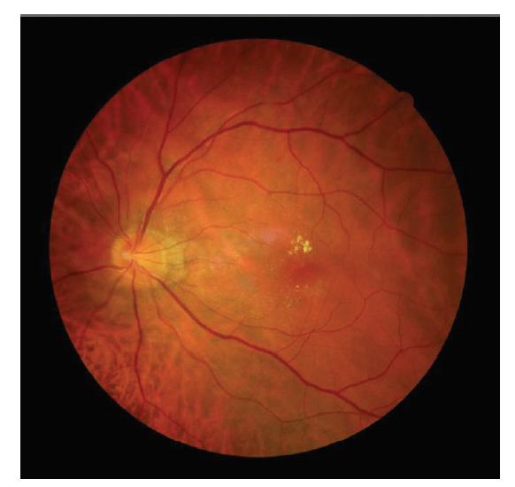 Snímek očního pozadí levého oka pacienta s choroidální makrocévou