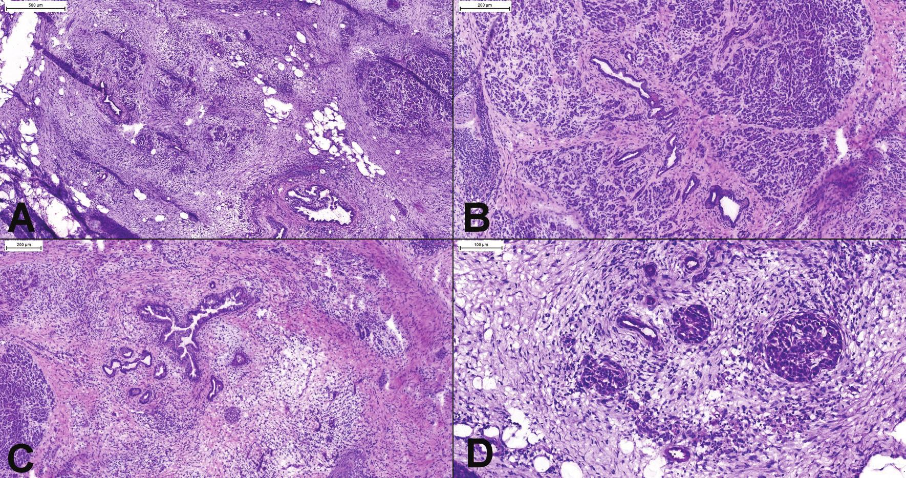 (A) Chronická pankreatitída. Aj v oblastiach ťažkej atrofie (vľavo hore) je stále viditeľné organoidné lobulárne usporiadanie. (B) Oblasť s miernou až stredne výzaznou atrofiou a fibrózou. Je prítomná proliferácia duktov, ktoré sú však lokalizované v centre pankreatického acinu. (C) Ťažká atrofia (acinárne štruktúry úplne chýbajú) s proliferáciou duktov s hyperplastickým epitelom. Lobulárne usporiadanie je známkou pankreatitídy, nejedná sa o karcinóm. (D) Psudohyperplastické Langerhansove ostrovčeky a proliferujúce dukty s reaktívnymi atypiami môžu imitovať karcinóm v dezmoplastickej stróme.