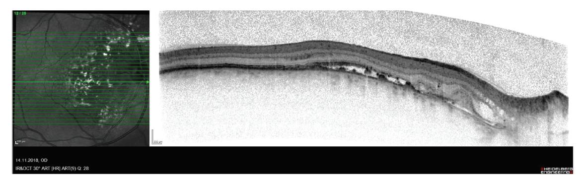 Snímek optické koherenční tomografie pravého oka pacienta s hemangiomem cévnatky