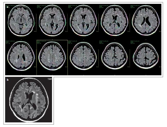 Pacient č. 5: prostorová koregistrace, barevné mapování, červeně jsou označena nová nebo zvětšená ložiska v sekvenci FLAIR, červená barva je v oblasti okcipitálního laloku, částečně i parietálně bilaterálně, v putamen l. dx – PML léze, kontrolní vyšetření PML – jsou patrné rozsáhlé ložiskové změny okcipitálně bilat, temporálně a parietálně l. sin (b). PML – progresivní multifokální leukoencefalopatie<br> Patient No. 5: spatial co-registration, colour mapping, new leions on FLAIR sequence are marked in red. Red in the left occipital lobe, bilaterally in the parietal lobes, and in the right putamen – PML (a), follow-up – big lesions in occipital lobes and left temporal a parietal lobe (b). PML – progressive multifocal leukoencephalopathy