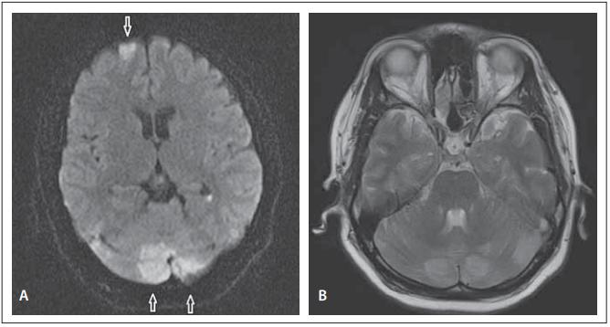 (A) Diff usion weighted MRI – focal areas of restriction in the left superior frontal region (arrow) and in both cerebellar hemispheres (arrows). (B) MRI T2-WI sequence – hyper-intense lesions in both cerebellar hemispheres.<br> Obr. 1. (A) Difuzí vážená MR – ložiska restrikce nahoře frontálně vlevo (šipka) a v obou mozečkových hemisférách (šipky). (B) T2-WI sekvence na MR – hyperintenzní léze v obou mozečkových hemisférách.
