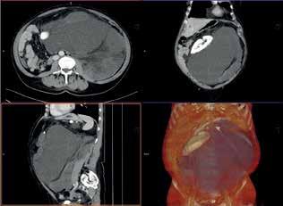 CTA obraz tumoru <br> Fig. 6: CTA scan of the tumor