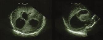 Ultrasonografický nález asymetrie a dilatace postranních mozkových komor – oboustranně frontálně přítomné hyperechogenity a patrné známky proběhlé ventrikulitidy.