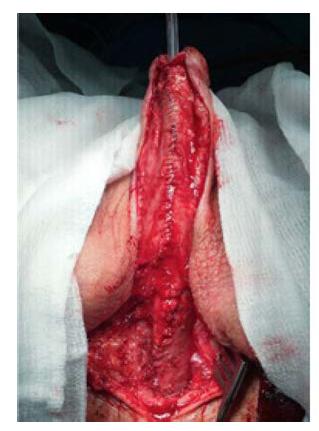 Kompletní tubulizace uretry v rámci druhé doby uretroplastiky<br> Fig. 6. Complete urethral tubulization during second stage of urethroplasty