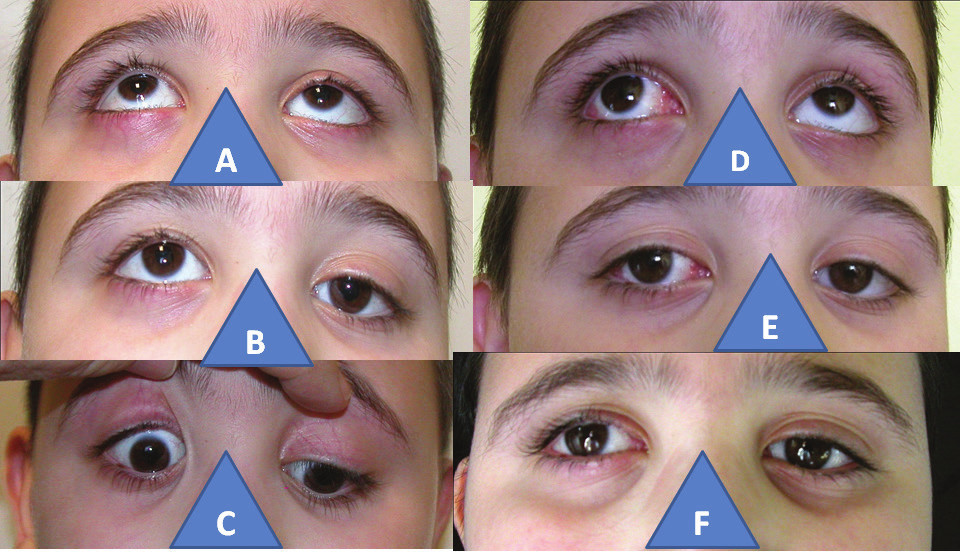 6-year-old boy with congenital palsy of the inferior rectus muscle in the right eye: increase of elevation in right eye (A), hypertropia in right eye (B), incapacity of depression in right eye (C), practically aligned elevation after surgery with subsequent V-syndrome (D), practically parallel positioning of eyes after surgery (E), finding is identical also three years after surgery (F)