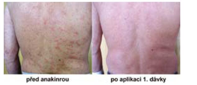 Pacient před a po užívání anakinry